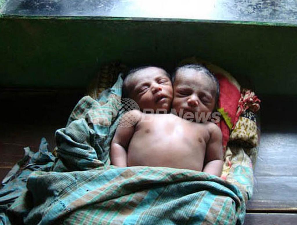 バングラデシュ、頭部が2つある赤ちゃんが誕生 15万人が殺到