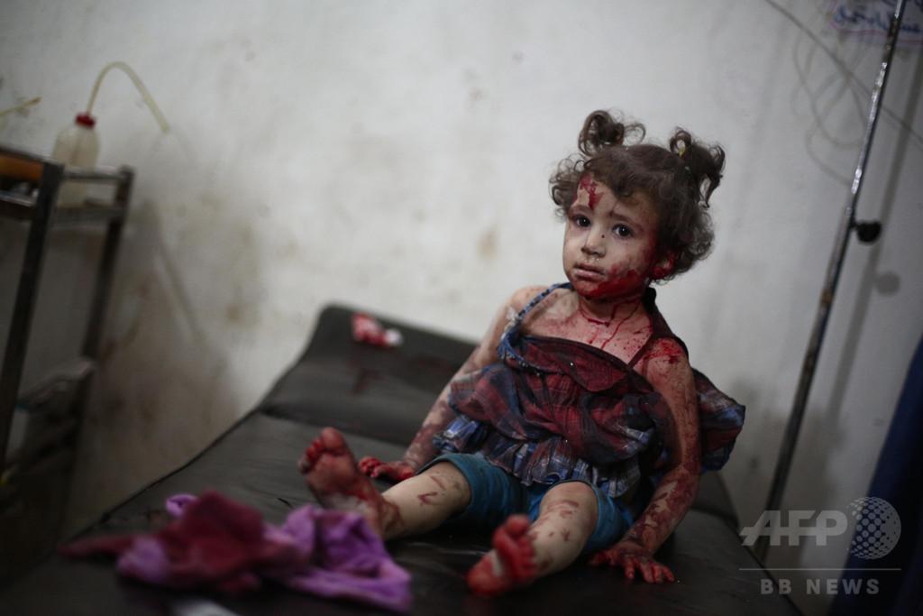 【AFP記者コラム】中東の流血写真と映像に向き合う編集者の苦悩