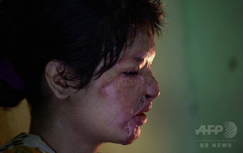苦しみ続ける酸攻撃の被害女性たち、インド