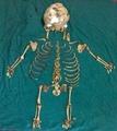 母親の体内に36年間、胎児の骨格を摘出 インド