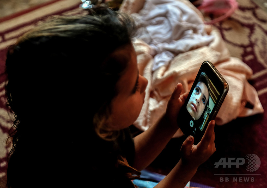 「大きな黒いアザ」で孤立する4歳少女、医療システム崩壊のイラク