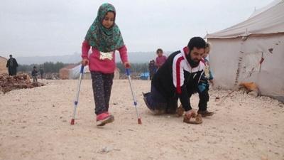 動画:空き缶義足のシリア少女、新しい義足で避難民キャンプを歩行