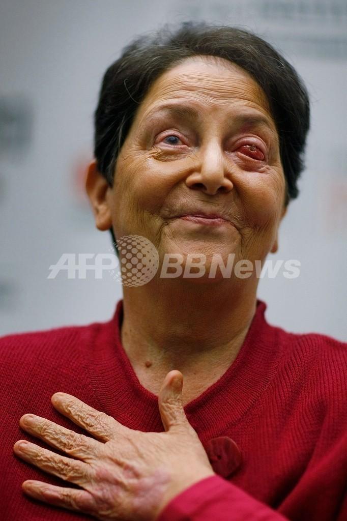 自分の歯を目に移植、失明から視力回復 米女性