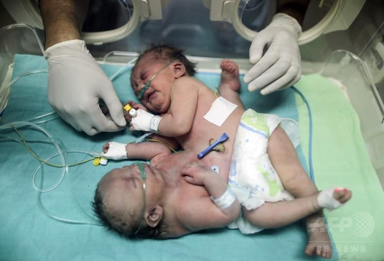 ガザ地区で結合双生児誕生、医師や親族が外国での分離手術訴え