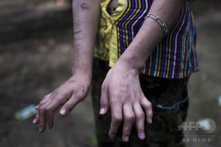 子どもに対する性的虐待件数、今年は前年比4割増 ミャンマー
