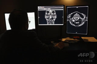 HIVの「隠れ家」をスキャン技術で特定、米研究