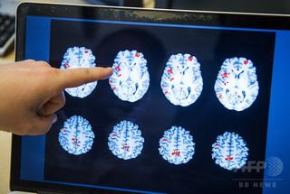 統合失調症患者の幻聴、脳への磁気刺激で改善 研究