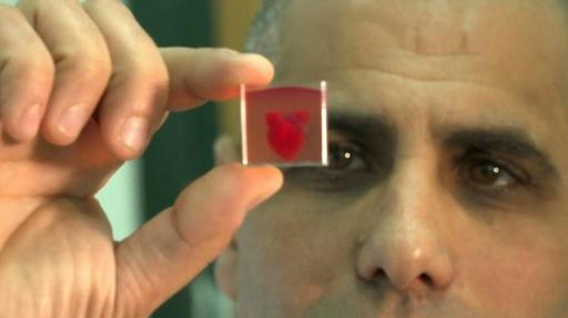 動画:3Dプリンターで「ヒト組織備えた心臓」作製、世界初 イスラエル