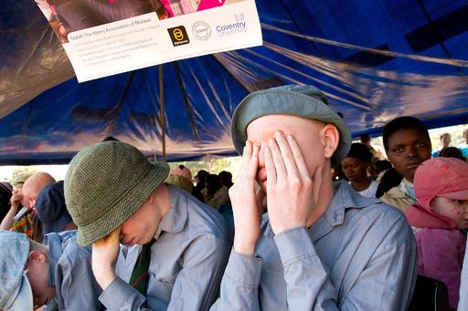 先天性色素欠乏症の6人が来年の選挙に立候補、マラウイ
