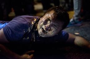 顔面に催涙スプレー浴びるカメラマン、香港デモ取材中