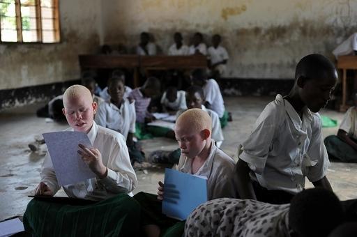 東アフリカ・ブルンジでまたアルビノ殺害事件、生きたまま手足を切断