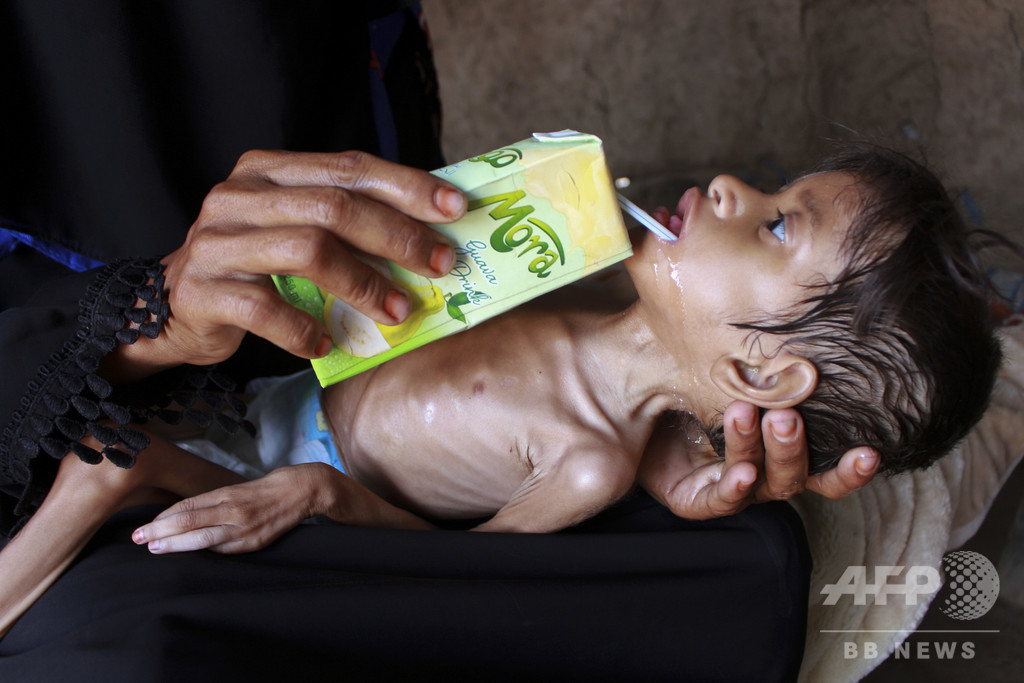 イエメンの子ども数百万人、「飢餓の瀬戸際」に? コロナ禍で資金援助減