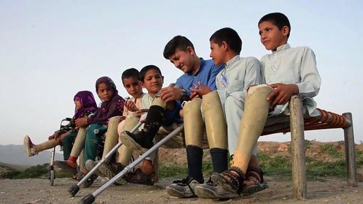 動画:不発弾で脚失った子どもたち、戦争終わらぬアフガニスタンの悲劇