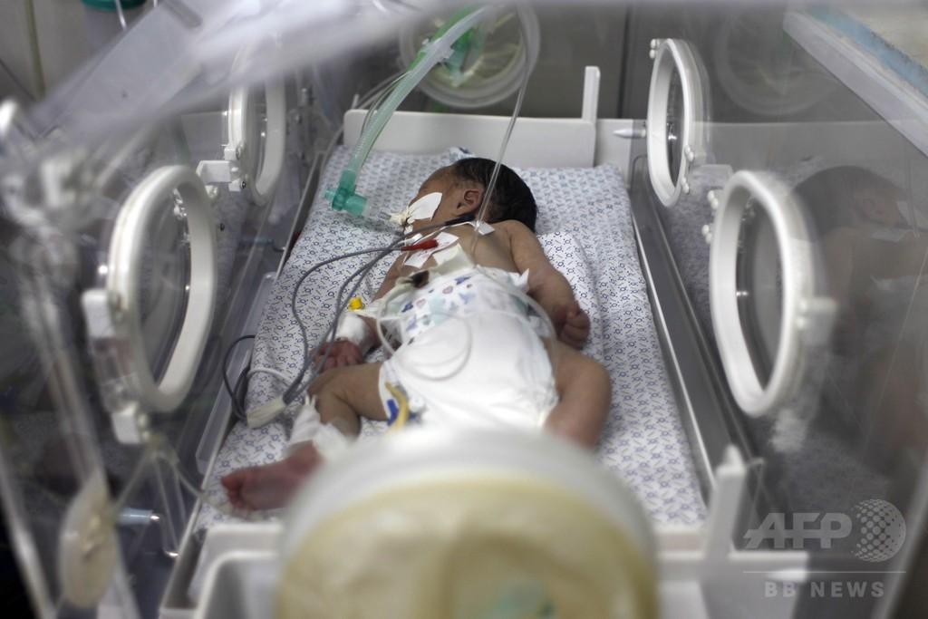 ガザ攻撃で死亡の妊婦から赤ちゃんを摘出