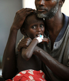 【写真特集】内戦の爪痕と避難民たち、飢餓のソマリア