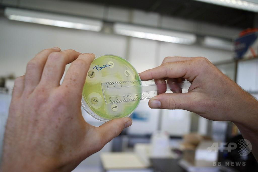 抗生物質を食べる細菌、詳細判明 研究