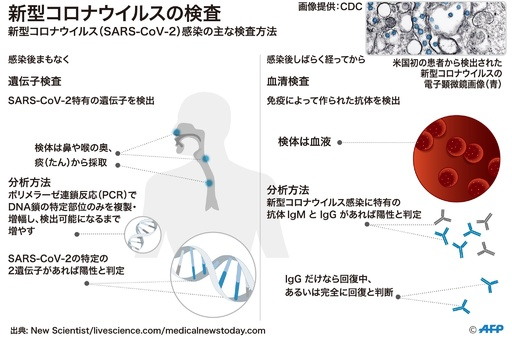 【図解】新型コロナ感染の検査方法とウイルスの構造