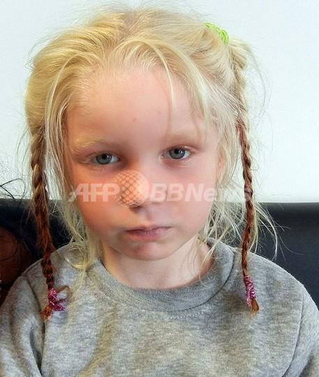 保護された「金髪の少女」、先天性色素欠乏症の可能性