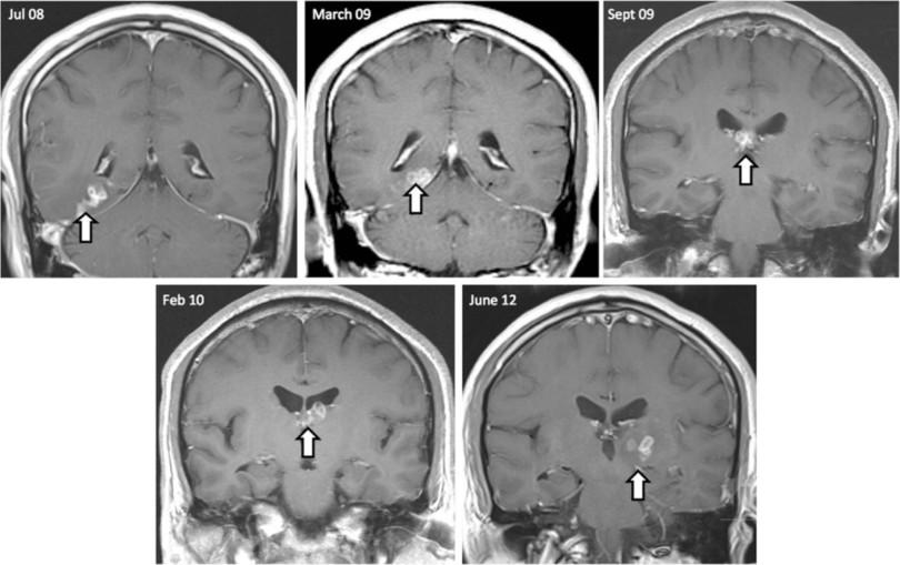 激しい頭痛の原因は脳に寄生したサナダムシ