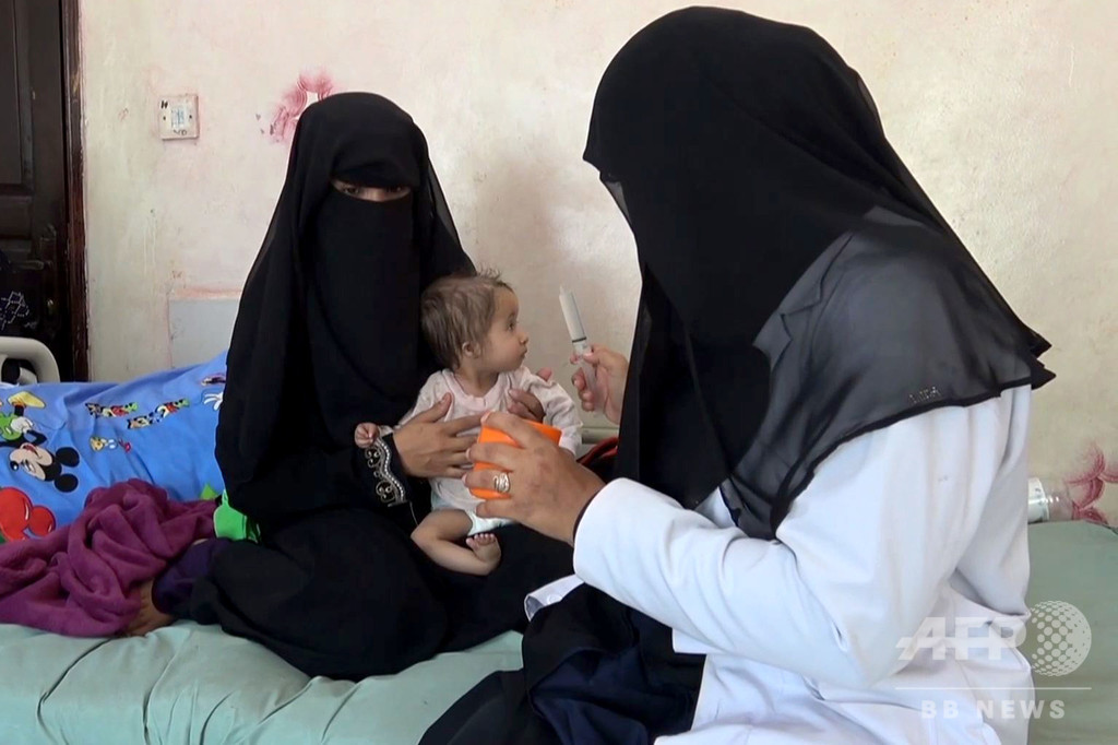 内戦下のイエメン、最大8万5000人の子どもが餓死・病死
