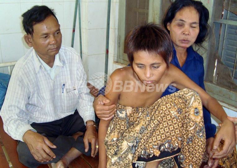 カンボジアの「ジャングル少女」、言葉を話し始める