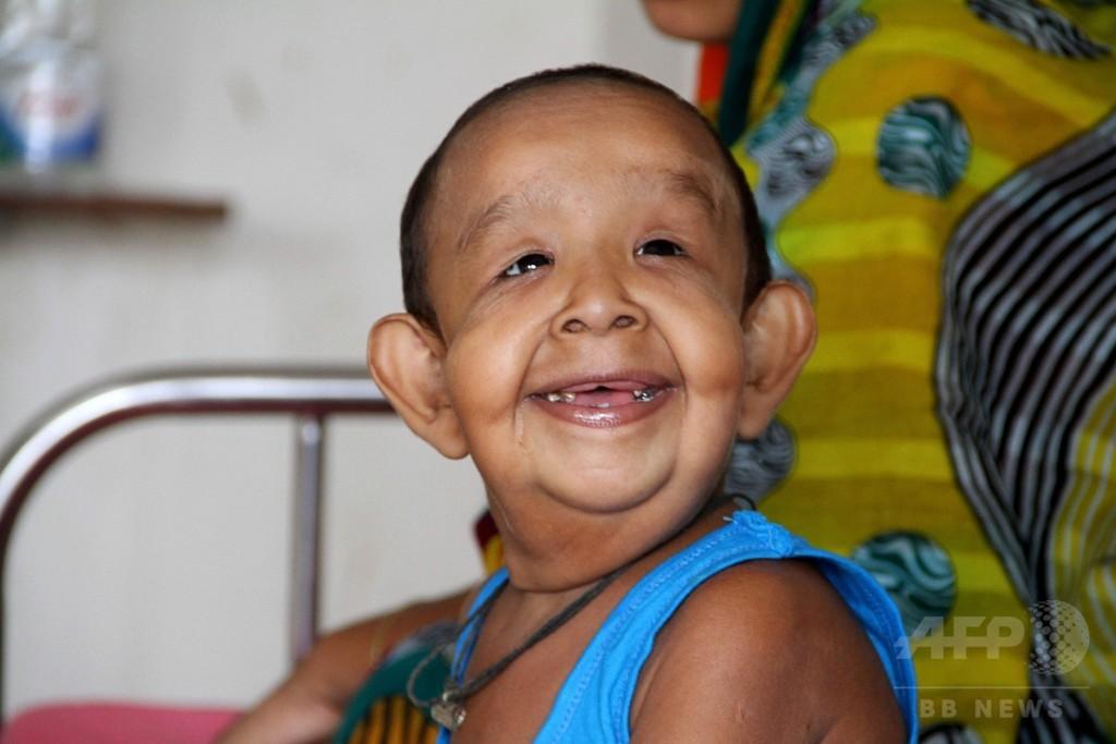 4歳児が老人に? バングラデシュの奇病、医師らが原因究明へ