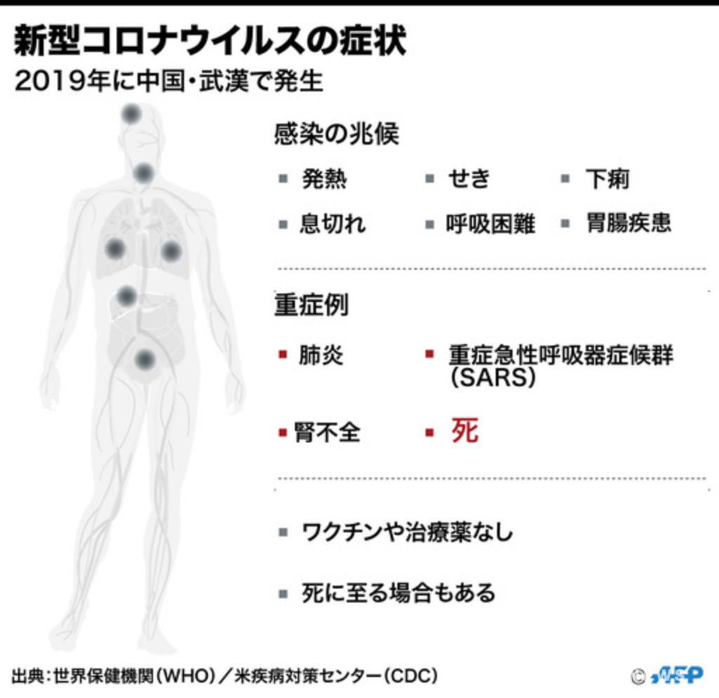 【解説】新型コロナウイルスの死者について分かっていること