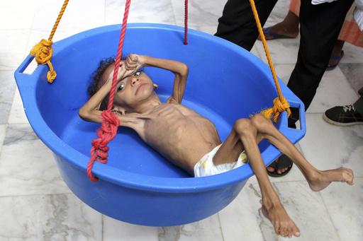近東と北アフリカで飢餓拡大、5200万人以上が栄養不足 FAO