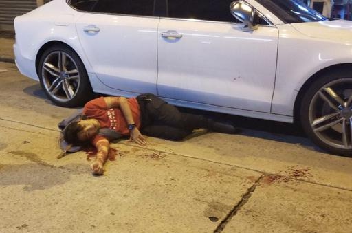 香港民主化団体リーダーを暴徒が襲撃 ハンマーで頭部負傷
