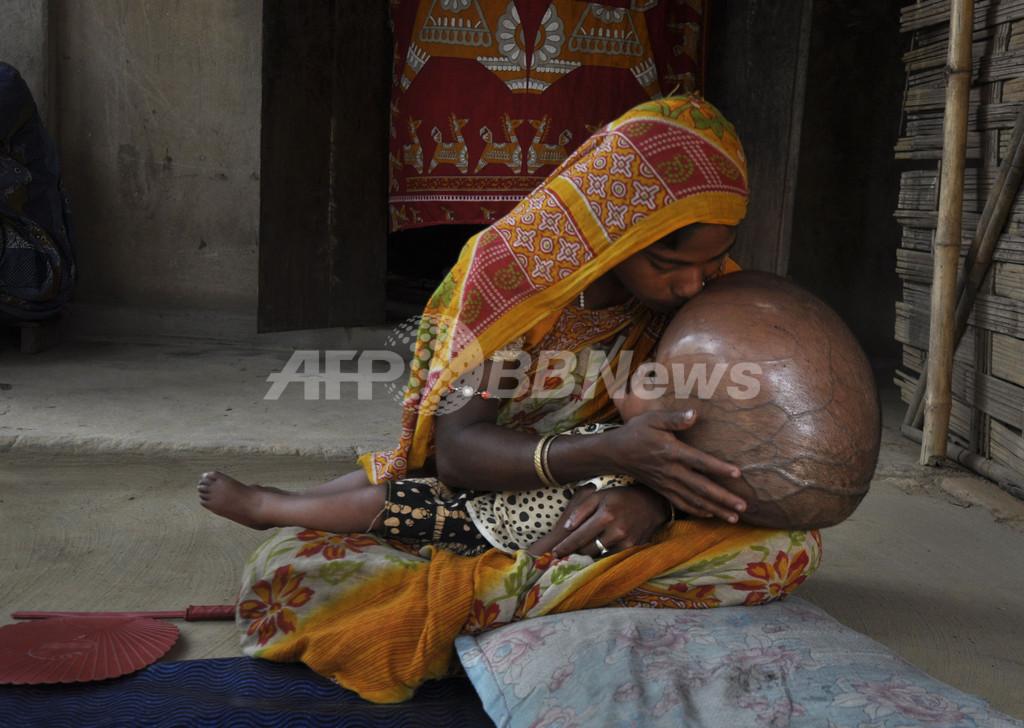 水頭症に苦しむインドの女児、治療に道は?