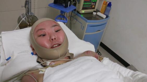 全身やけどの少女、父から皮膚移植受け危機的状況から脱する 湖南省