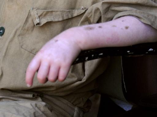 15歳のアルビノ少年、切断遺体で見つかる ブルンジ