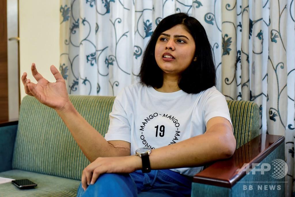 事故で両腕失った女性、男性の腕移植で新たな人生 インド