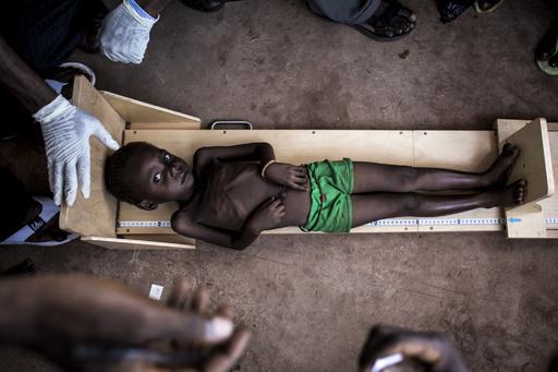 コンゴで子ども40万人以上が餓死する恐れ、栄養失調深刻 ユニセフ
