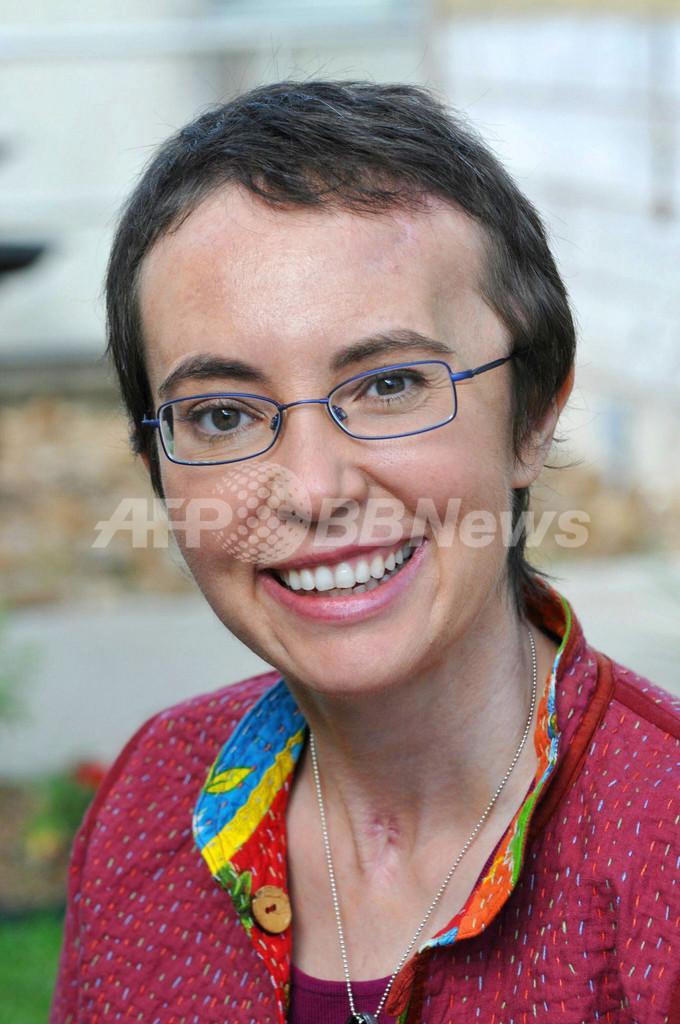 米ギフォーズ議員、銃乱射事件後初の写真公開 笑顔見せる
