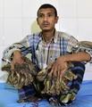 バングラデシュの「樹木男」 巨大イボ除去手術へ