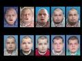 史上最も複雑な顔面移植手術、消防団員の男性に実施 米病院
