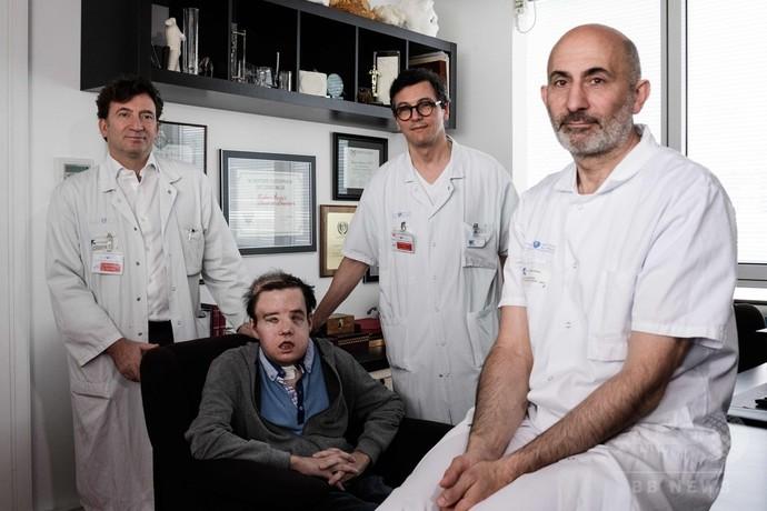 同一患者への2回の顔面移植手術に成功、世界初