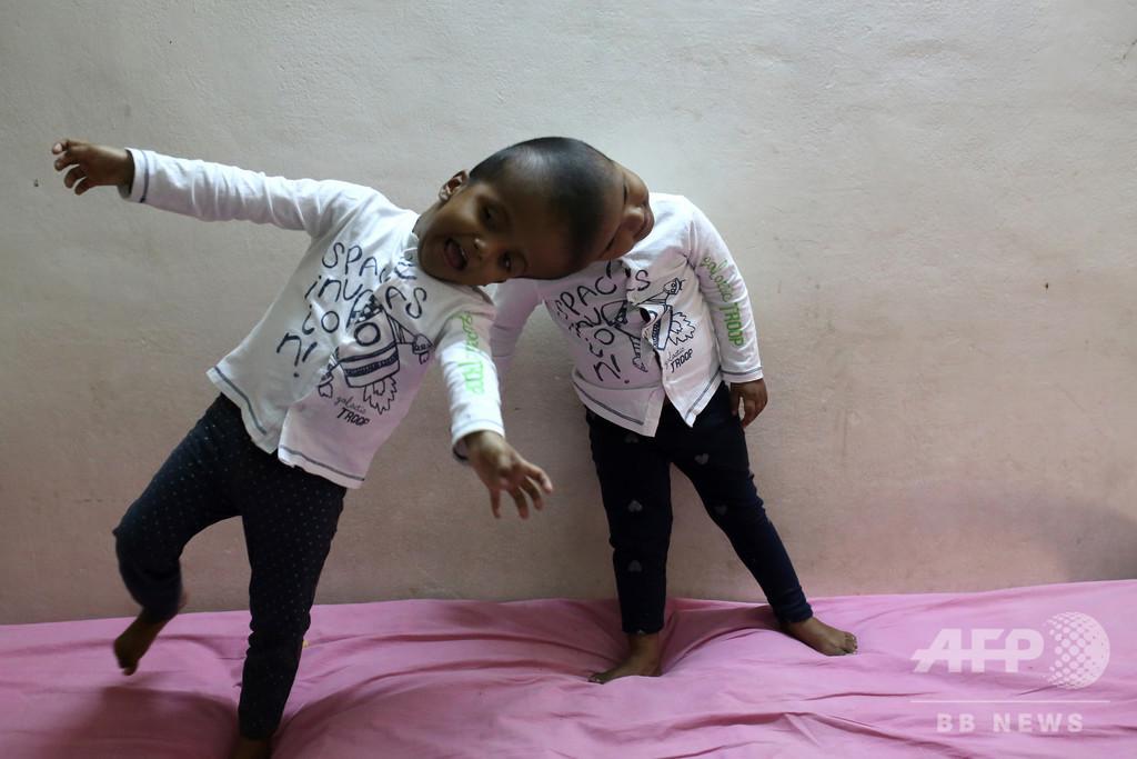 バングラの頭部結合双生児、30時間に及ぶ分離手術が成功