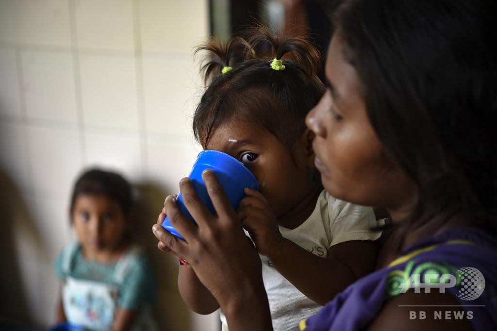 2018年の飢餓人口は8億2100万人 3年連続で増加 国連