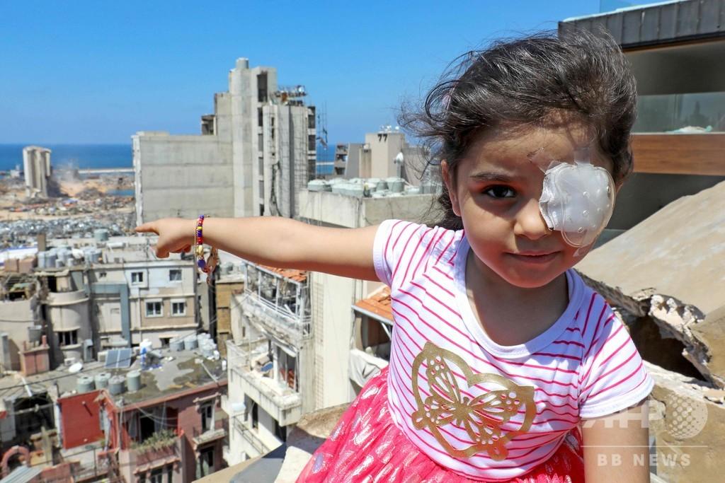 「どん底から見る世界」 ベイルート大爆発で失った片目