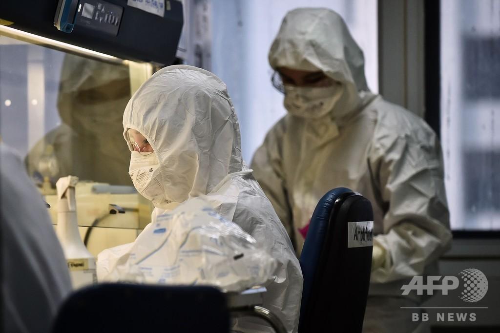【解説】新型コロナウイルスとの闘い、抗HIV薬は有効か