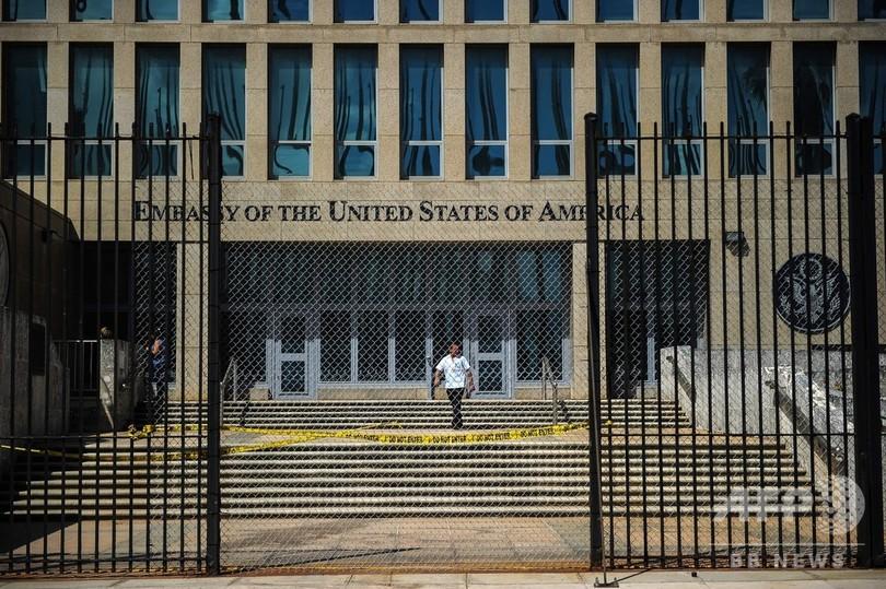 キューバの米外交官襲った謎の音、正体はコオロギ? 録音解析で新説