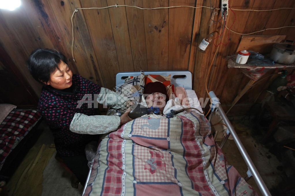 自家製呼吸器で息子の命支える中国の夫婦