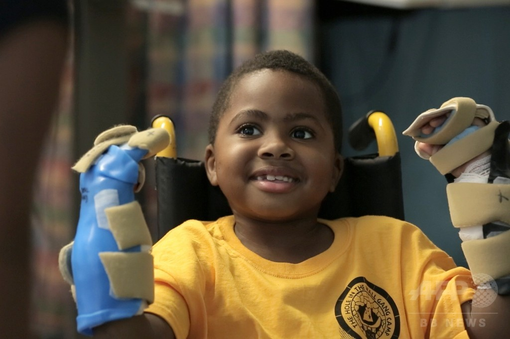 世界初、8歳児の両手移植手術に成功 米病院