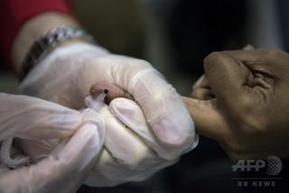 スマートフォンでHIVと梅毒を検査、新技術開発 米研究