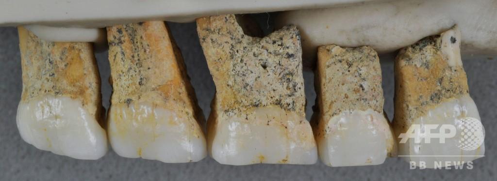 フィリピンで発見の化石、初期人類の新種と確認 5万年前