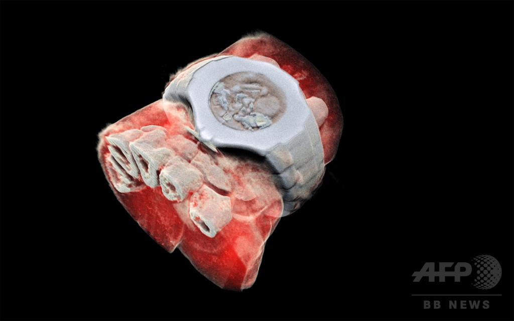 人体のカラーX線写真、撮影に初めて成功 NZチーム