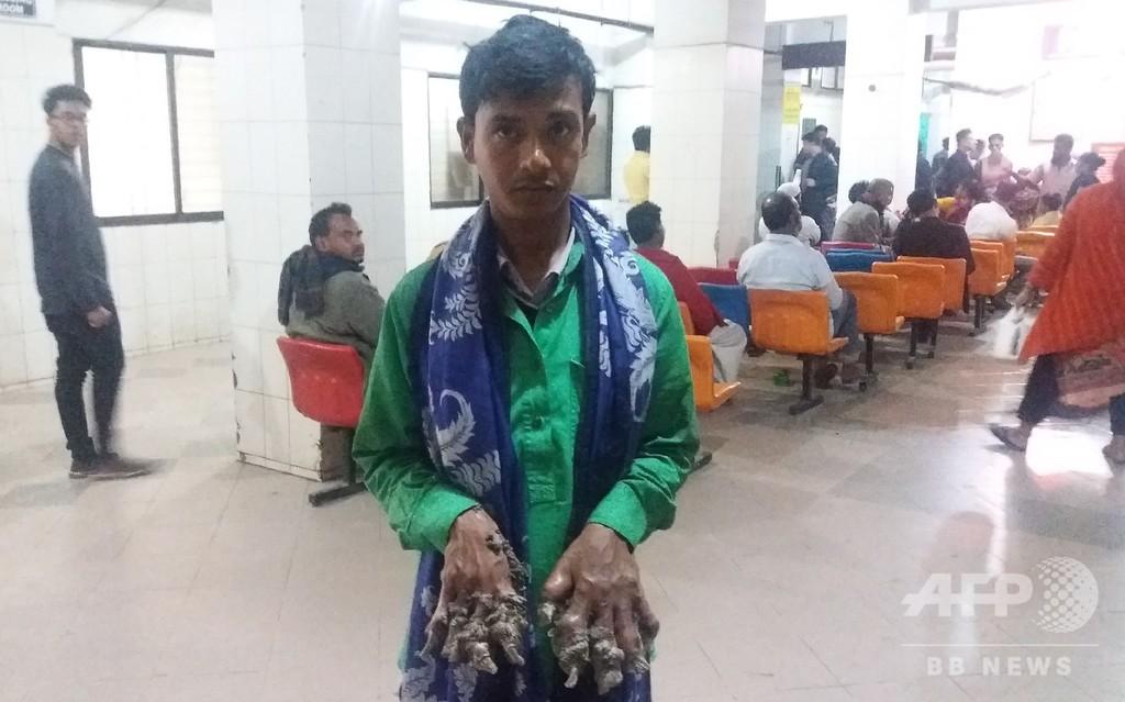 バングラデシュの「樹木男」、症状悪化で再入院