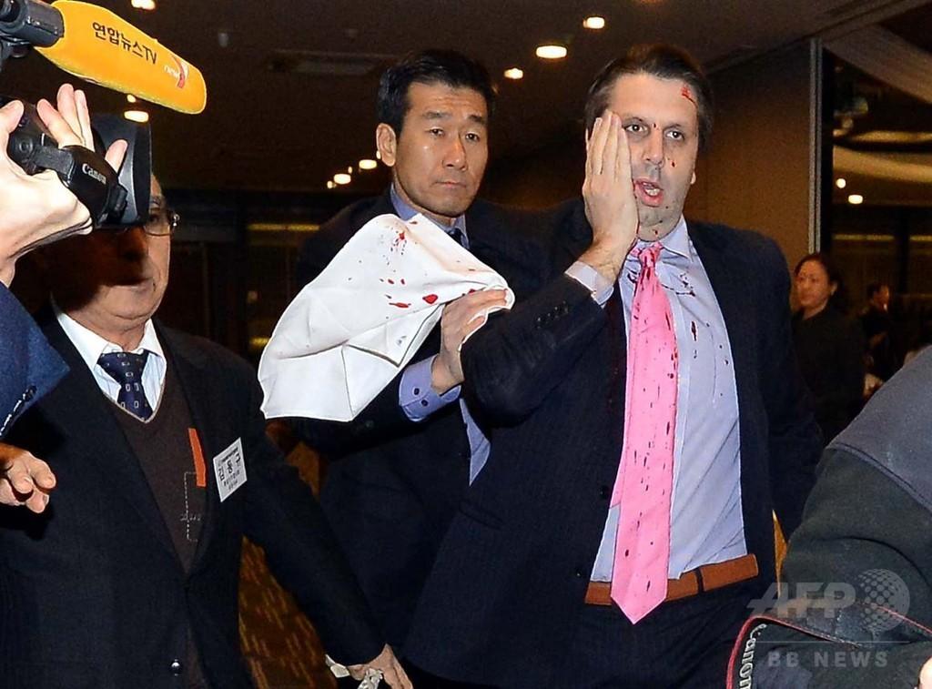 駐韓米大使、刃物男に襲われ負傷 ソウル
